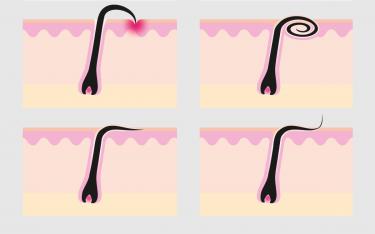 Hvordan oppstår inngrodde hår?